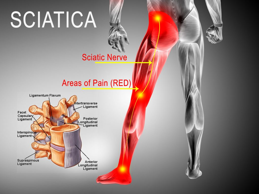 Chicago Sciatica Nerve Pain Relief at Advanced Spine in Lakeview IL