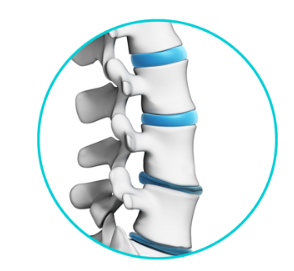 Lumbar Degenerative Disc Disease Treatments in Chicago IL - Advanced Spine & Sports Care