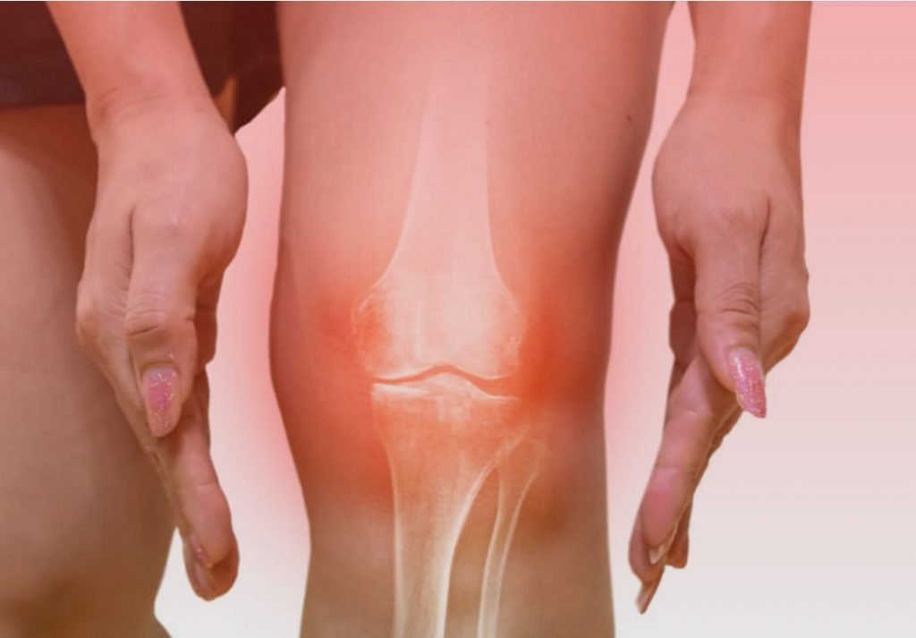Knee Injury Physical Therapy & Chiropractic Care in Chicago