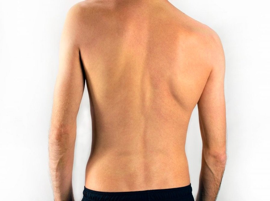 Advanced Spine and Sports Care _ Chiropractic care for scoliosis in Chicago